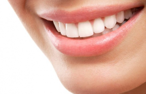 vitt-leende-med-tandblekning